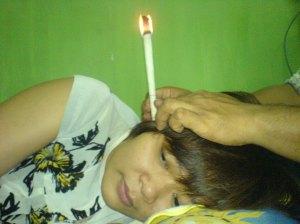 ear candle terapi